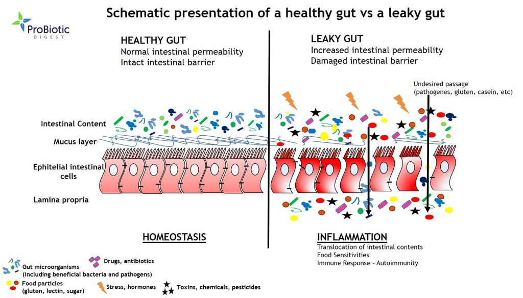 Image result for healthy gut