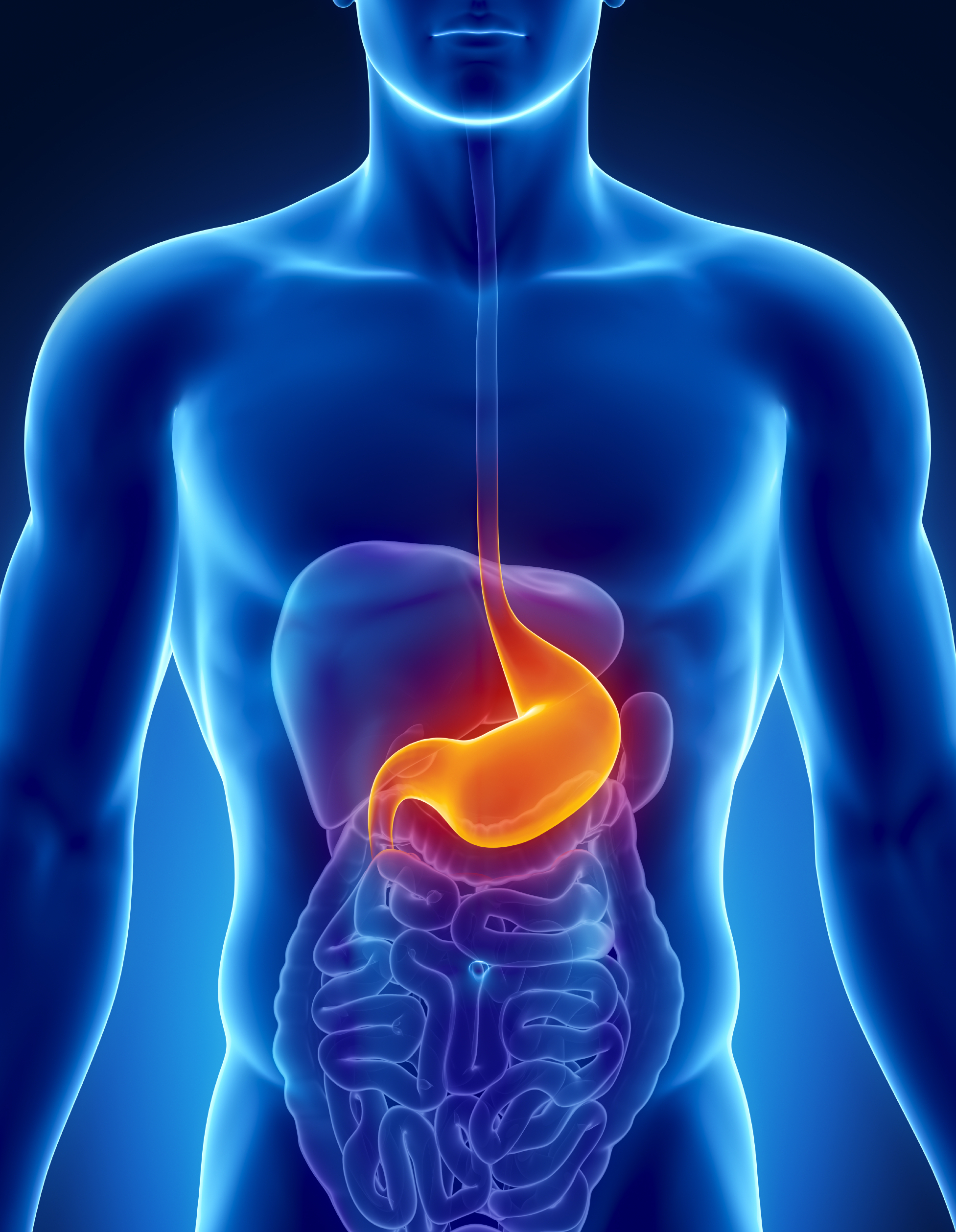 MANAGE YOUR ACID REFLUX WITHOUT MEDICATIONS - ProBiotic DIGEST